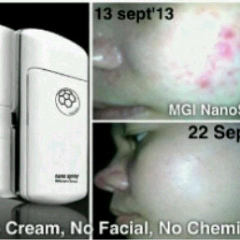 Nano Spray Facial Self Care